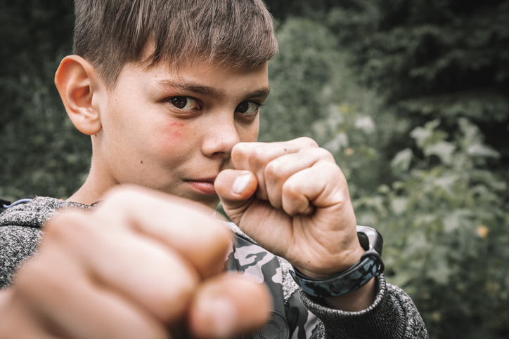 Portrait of a determined bully boy with a bruise on his face punching aggressively and looking at the camera outdoors. Childish rudeness and fight of teenagers with scars
